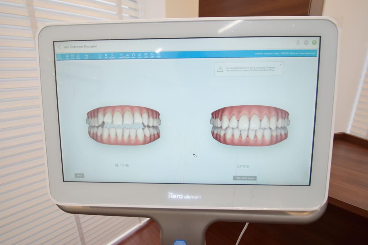 世田谷北沢 下北沢駅前歯科クリニック 最先端の先進医療機器で痛みの少ない治療