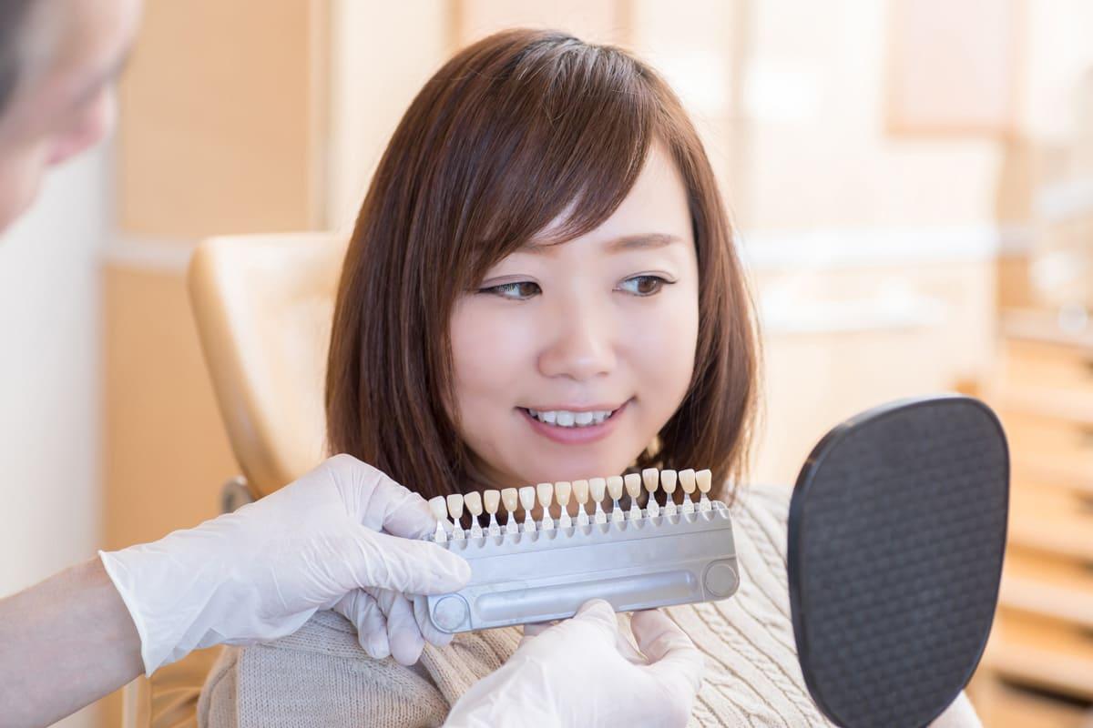 世田谷北沢 下北沢駅前歯科クリニック 審美歯科の注意点